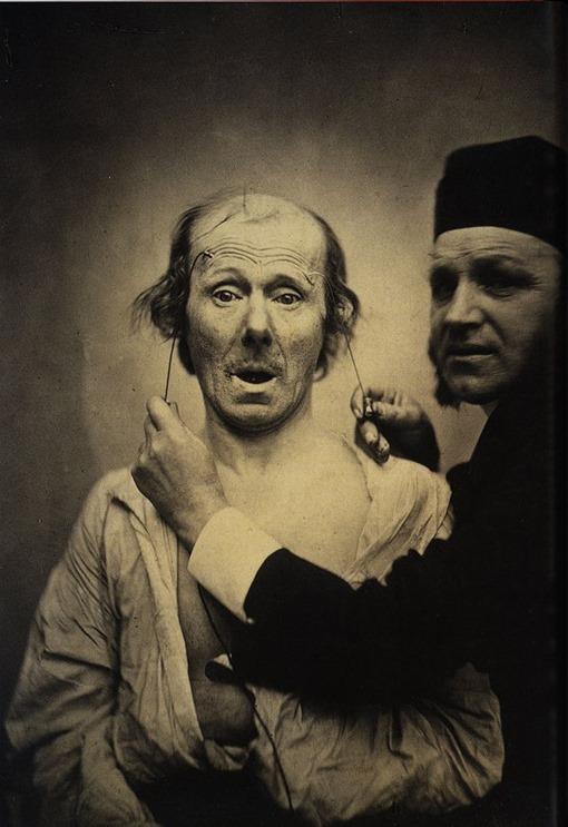 Guillaume_Duchenne_de_Boulogne_performing_facial_electrostimulus_experiments_(3)