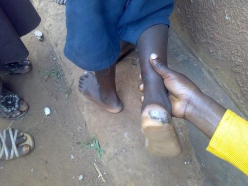 shoe that grow zapato crece pobreza niños